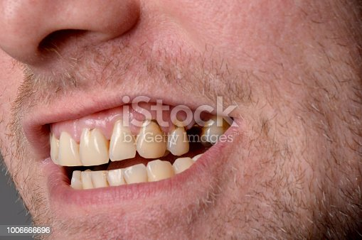 Young Man Showing Rotten Teeths
