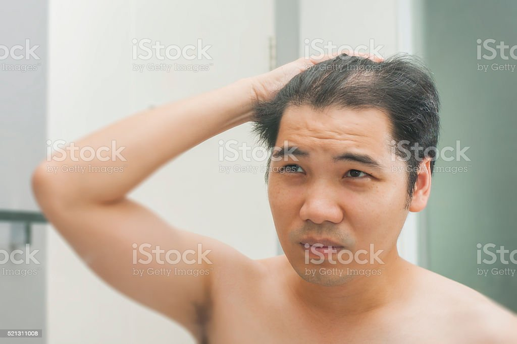 Young man standing in front of mirror concern hair loss stock photo