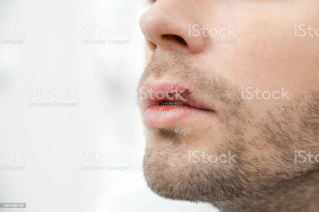 Mann herpes Herpes Simplex