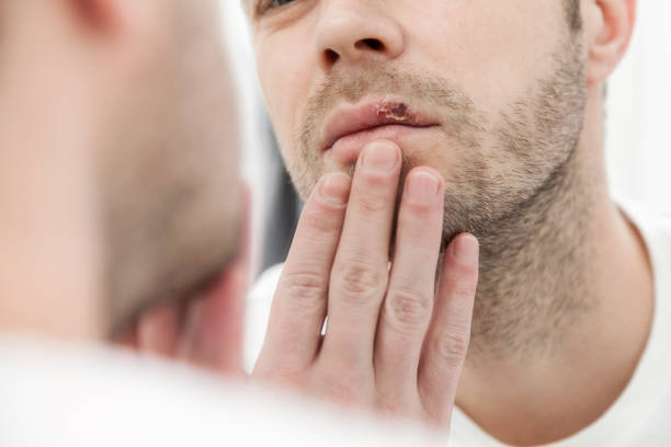 Young man suffering from herpes on his mouth Young man suffering from painful herpes on his mouth herpes stock pictures, royalty-free photos & images