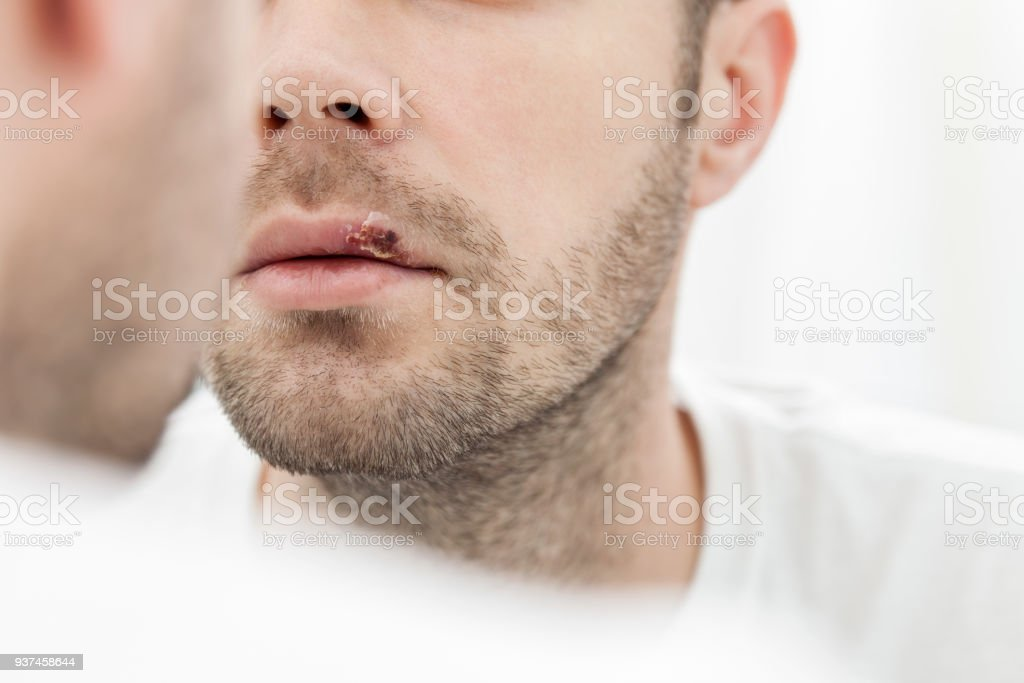 Young man suffering from herpes on his mouth stock photo