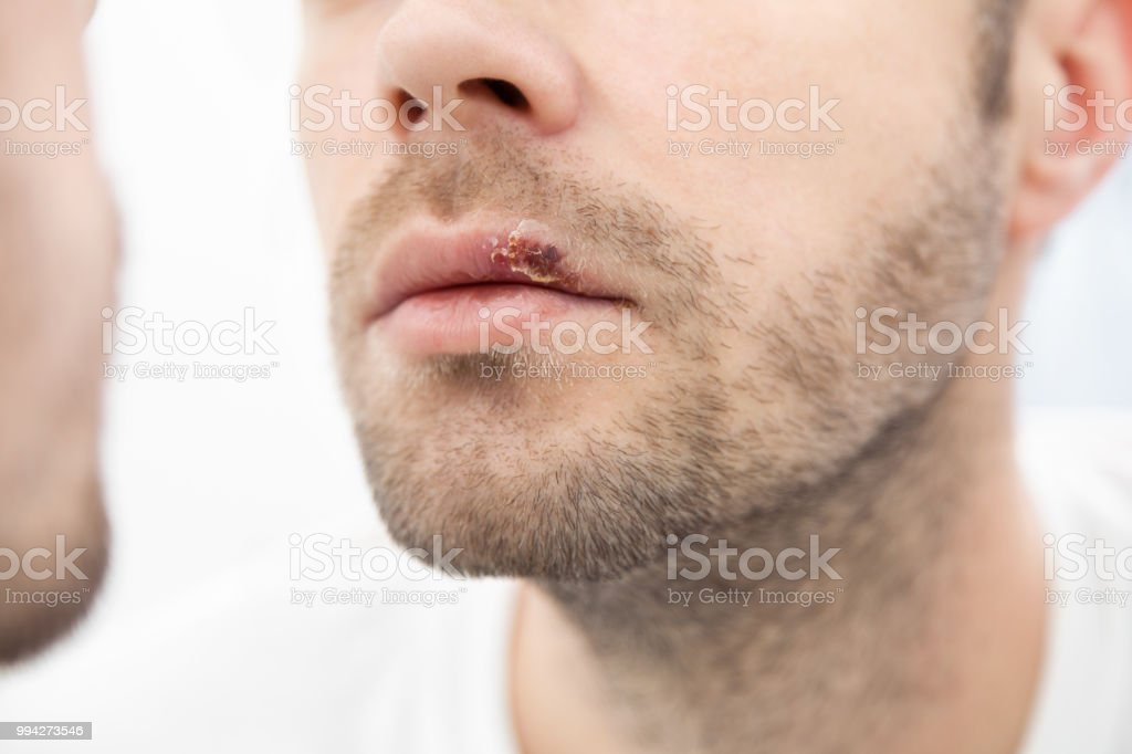 Joven sufre de herpes en la boca - foto de stock