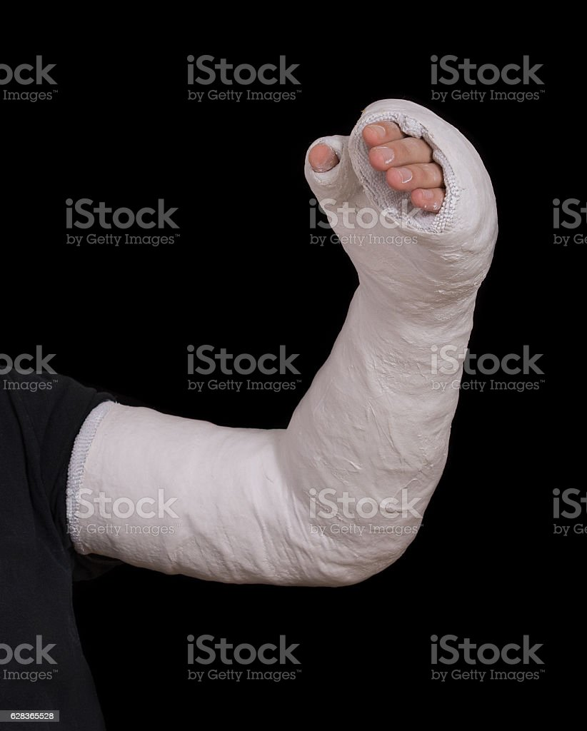 Young man wearing a long arm plaster fiberglass cast stock photo