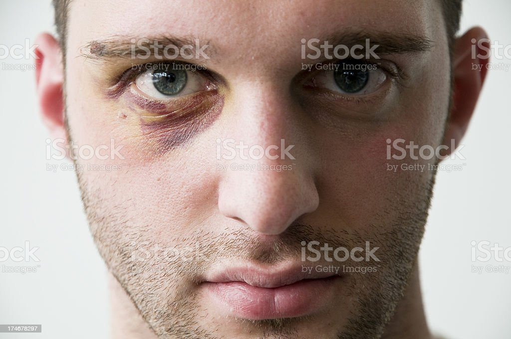 young man with a black eye stock photo