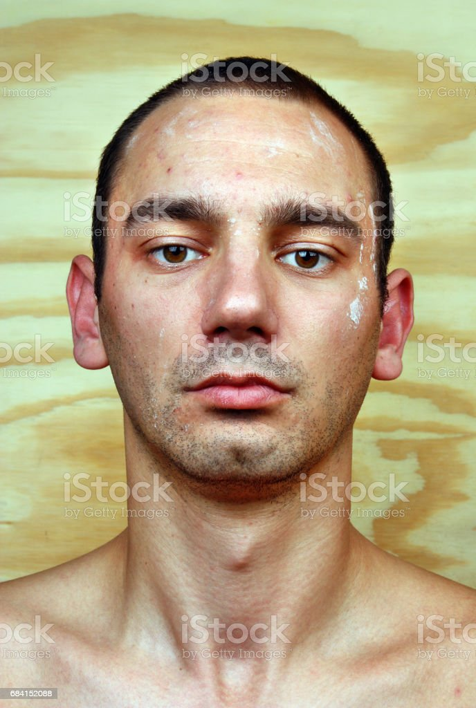 Young man with a chronic infection of the skin foto stock royalty-free
