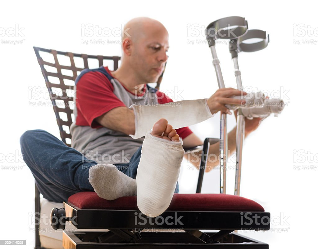 Young man with a leg cast and an arm cast stock photo