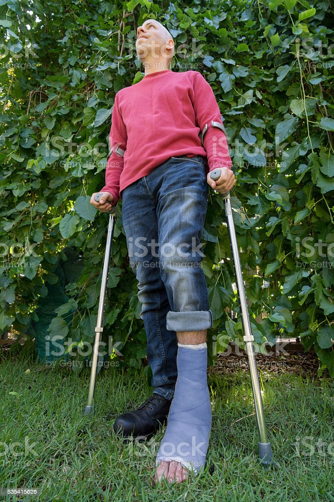 Young man with a leg cast in a garden stock photo