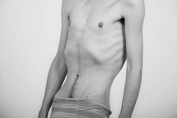 Young man with anorexia nervosa problem. stock photo