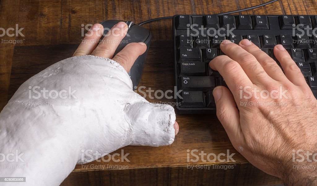 Young man with arm cast using a computer mouse stock photo