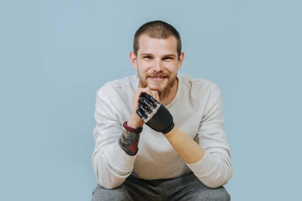 ung man med konstgjord hand ser fram emot och ler mot kameran - protesutrustning bildbanksfoton och bilder