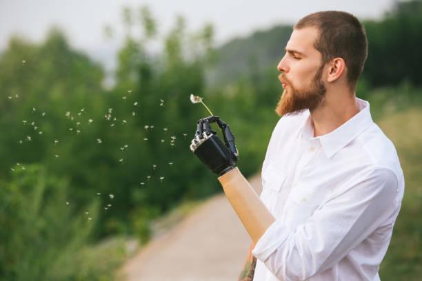 ung man med konstgjord lem håller maskros och blåser på den - protesutrustning bildbanksfoton och bilder
