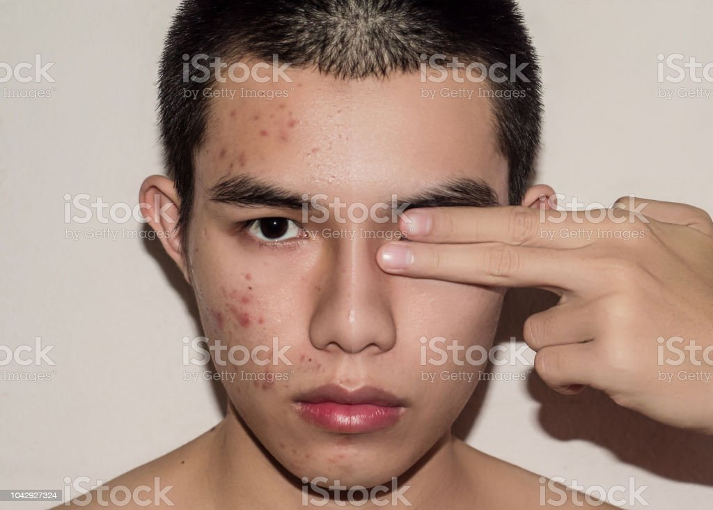 Young man with before and after treatment from acne and pimple by removal acne. stock photo