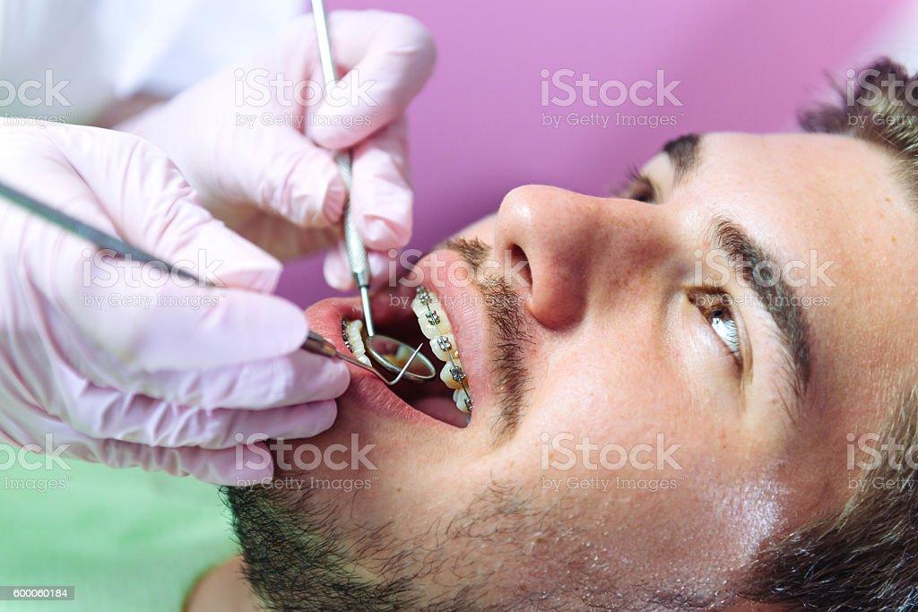 Junger Mann mit Zahnspange beim Zahnarzt – Foto