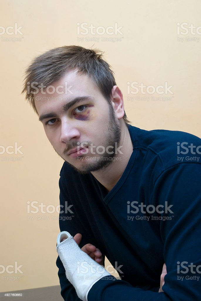 Young man with bruise stock photo