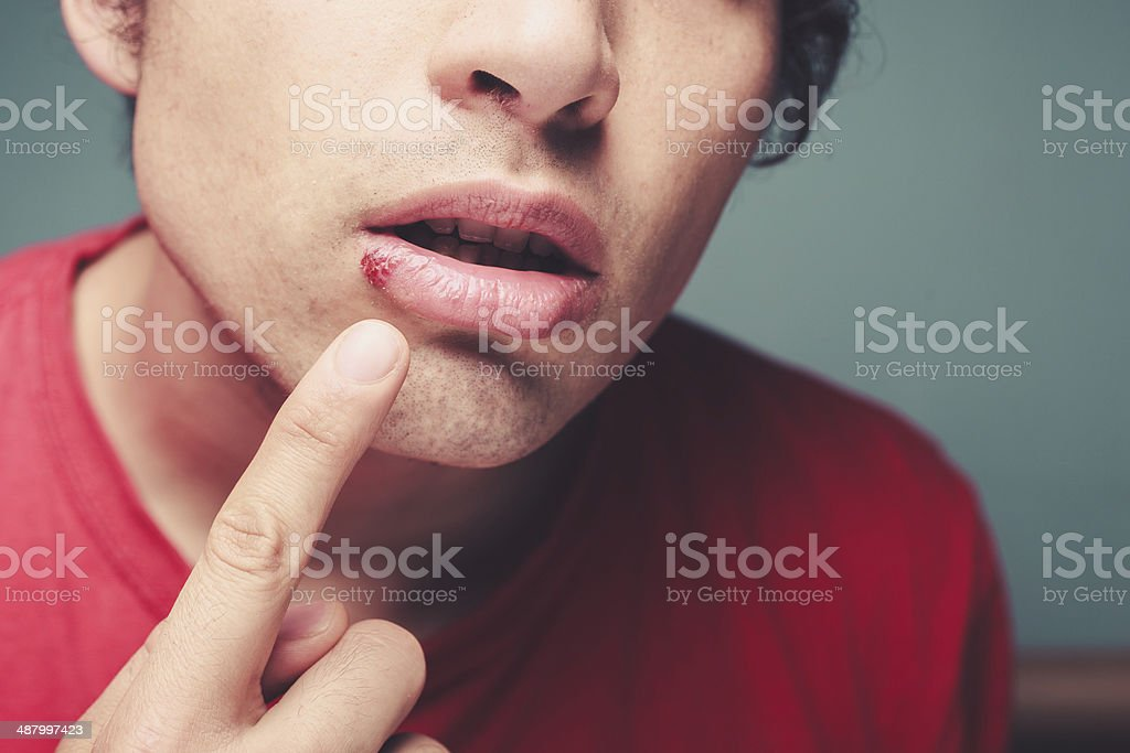Young man with cold sore stock photo