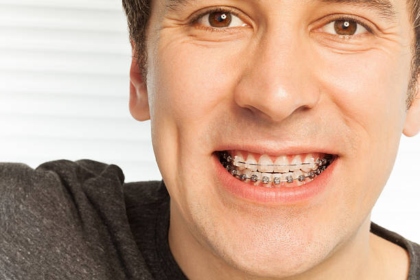 young man with dental braces on his teeth - brace stock pictures, royalty-free photos & images