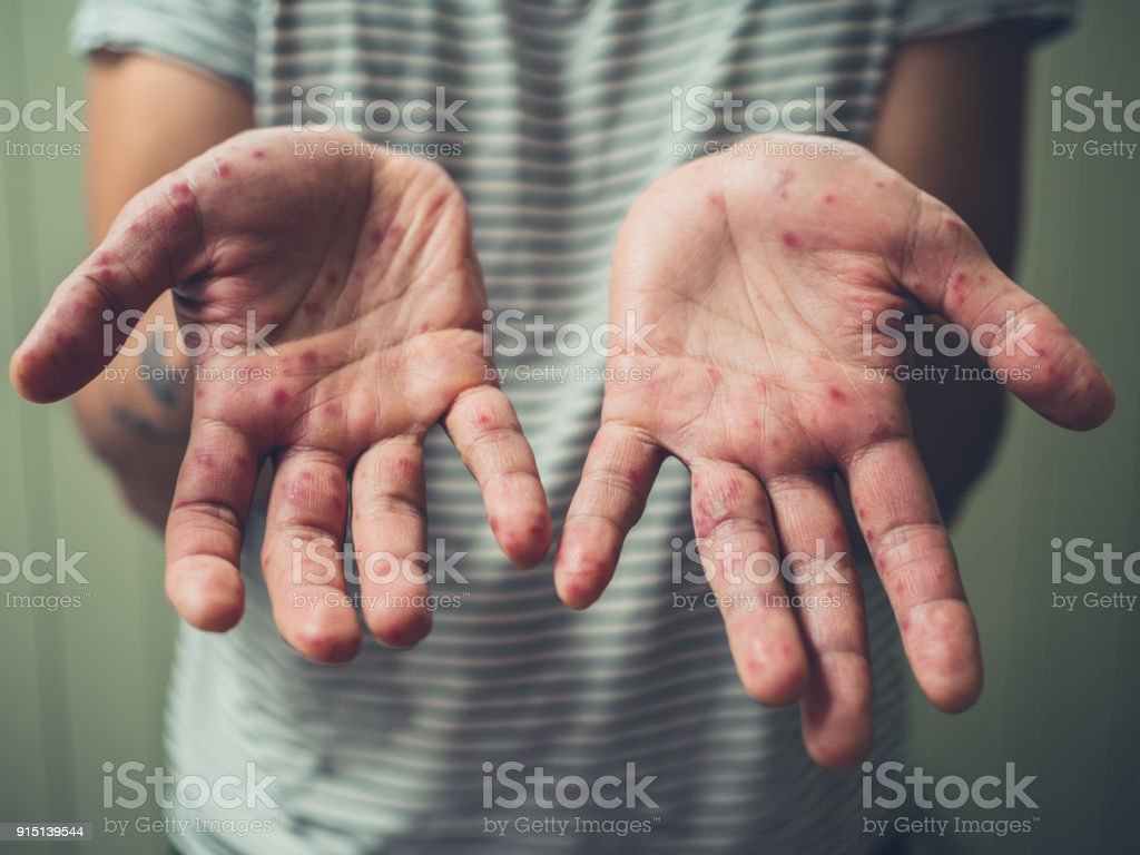 Young man with hand foot and mouth disease A young man is showing his hands with spots and rash from hand foot and mouth disease Adult Stock Photo