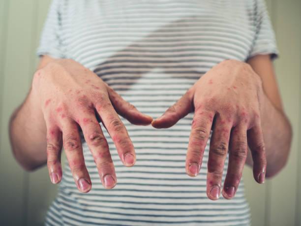 hombre joven con mano fiebre aftosa - enfermedades de los pies fotografías e imágenes de stock