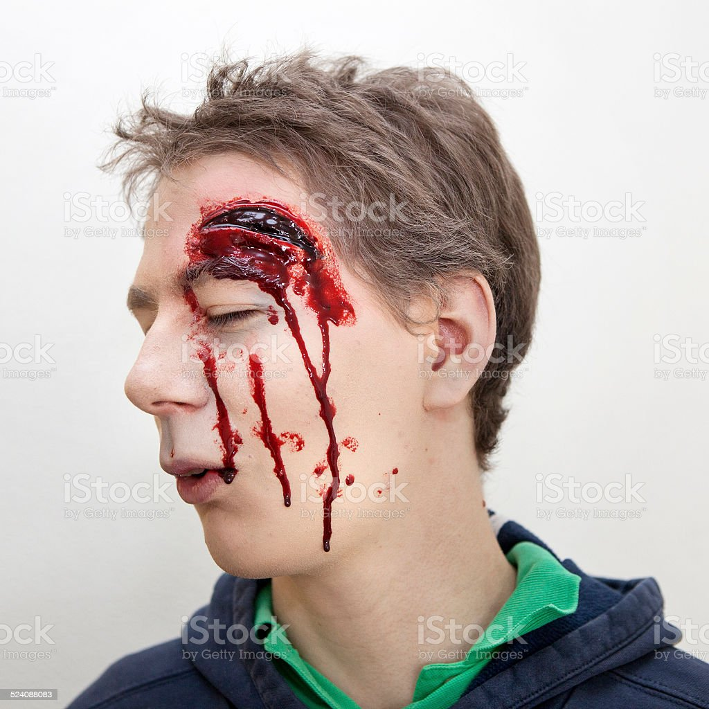 Young man with head injury - laceration. Special effects make-up