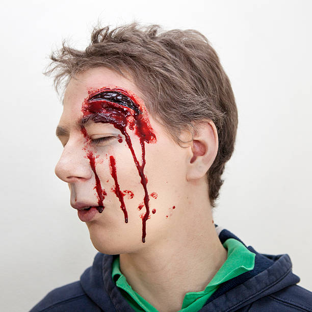 Young man with head injury - laceration stock photo