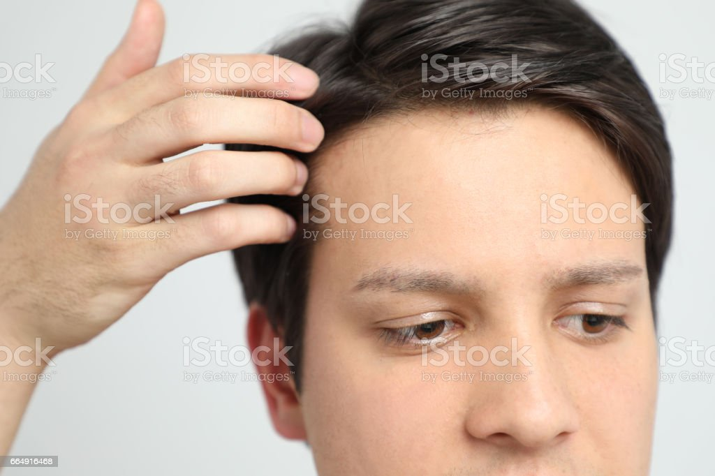 Young man's forehead stock photo