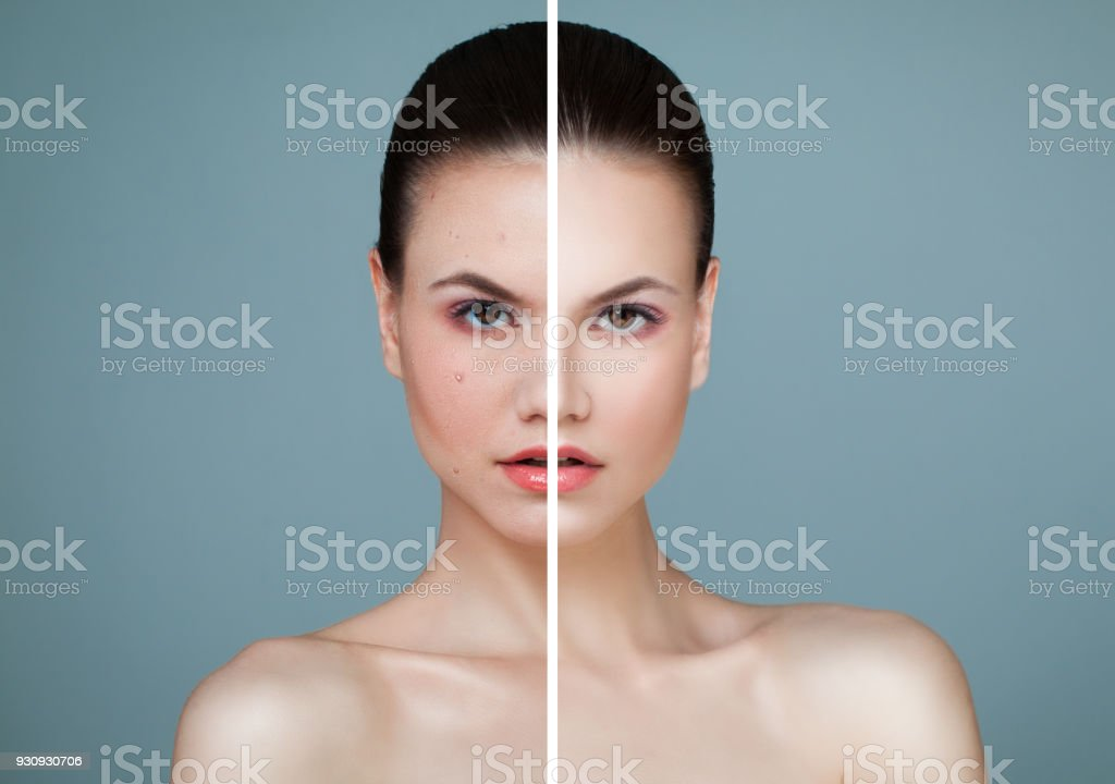 Young Model Woman with Skin Problem and Clear Skin Closeup Portrait. Unhealthy and Healthy Skin After Treatment. Facial Treatment, Medicine and Cosmetology Concept stock photo