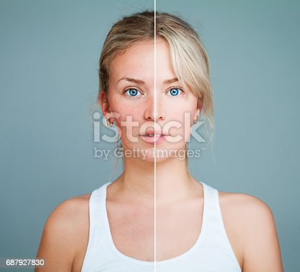 Young Model Woman with Skin Problem. Female Face Divided into two Parts one Healthy and one Unhealthy. Facial Treatment, Medicine and Cosmetology Concept