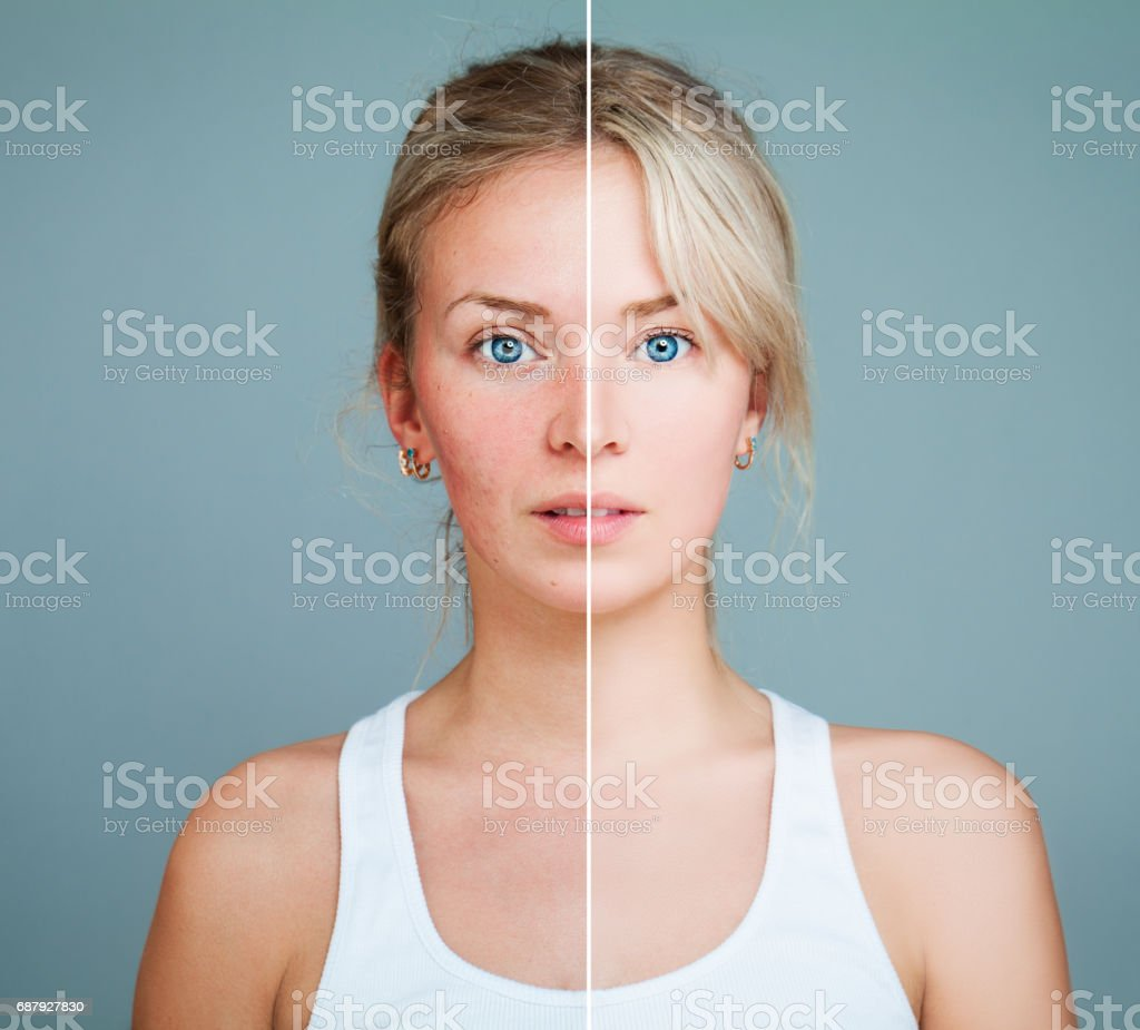 Young Model Woman with Skin Problem. Female Face Divided into two Parts one Healthy and one Unhealthy. Facial Treatment, Medicine and Cosmetology Concept - foto de stock
