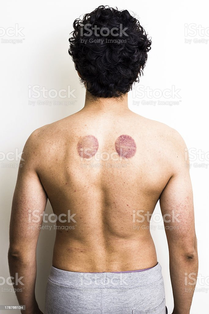 Young multiracial man with marks from cupping therapy stock photo
