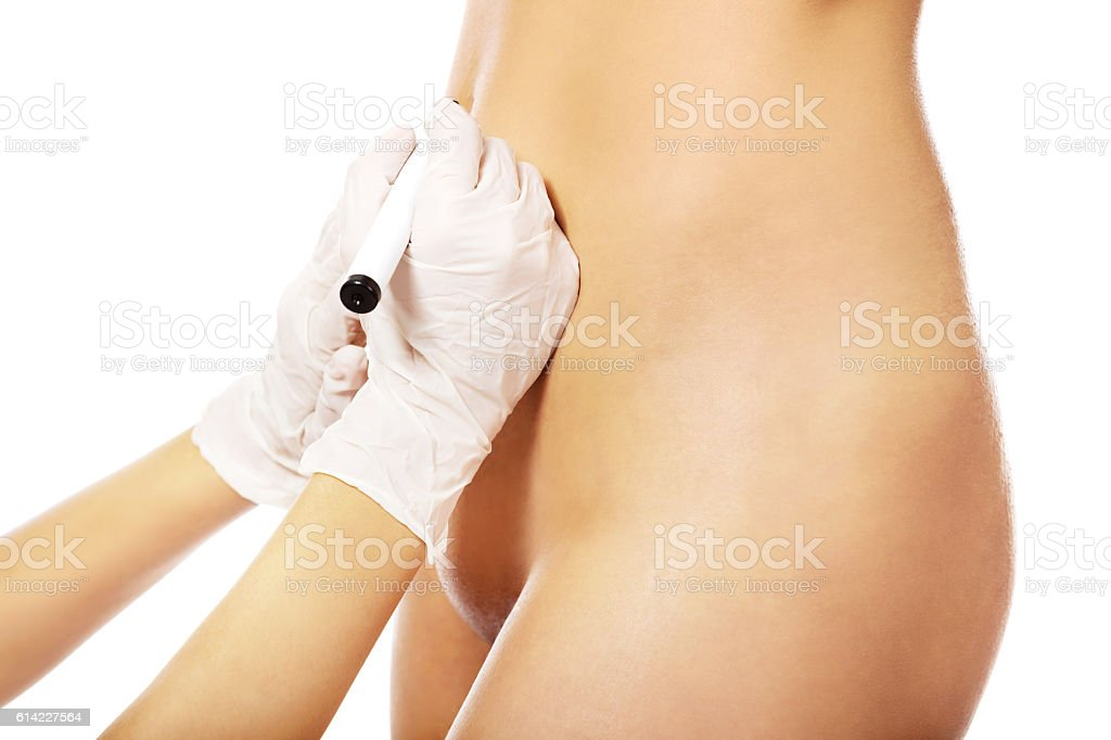 Young naked woman before surgery stock photo