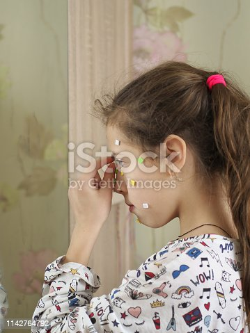514727472istockphoto Young teenage girl make up acne pimple on her face before a mirror, concept problem on skin 1142764792