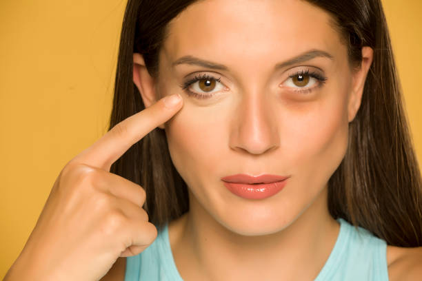 Young woman applying concealer on her  low eyelids on yellow background stock photo