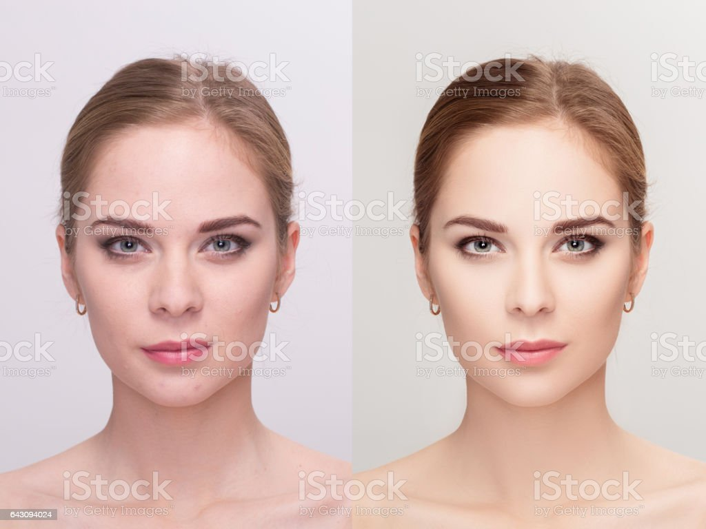 Young woman,  before and after retouch, beauty treatment. anti-a stock photo
