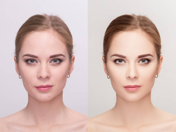 young woman,  before and after retouch, beauty treatment. anti-a - retouched image stock photos and pictures