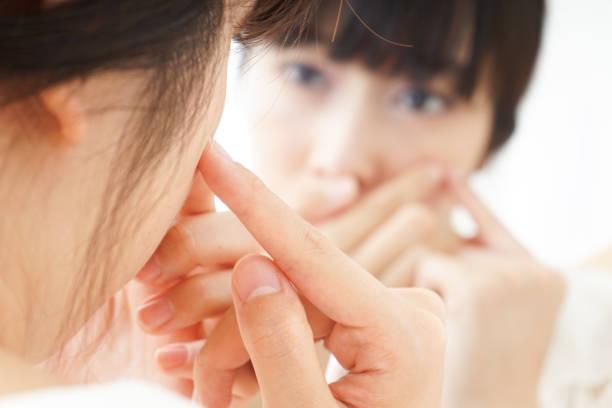 Jeune femme s'occupant de problèmes de peau - Photo