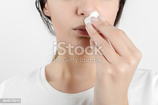 istock Young woman getting a bloody nose 934673510