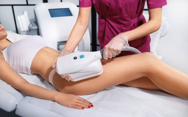 Young woman getting cryolipolyse treatment in cosmetic cabinet. Fat freezing technology on legs. Cool sculpting procedure stock photo