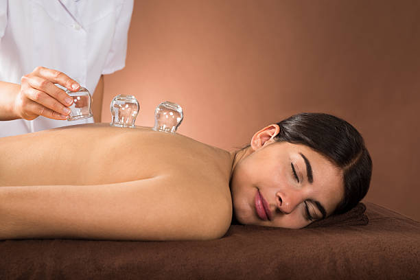 young woman getting cupping treatment - cupping therapy stock photos and pictures