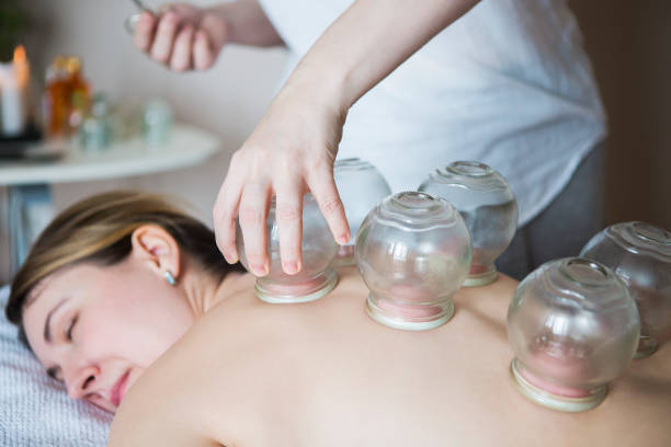 young woman getting treatment at medical clinic - cupping therapy stock photos and pictures