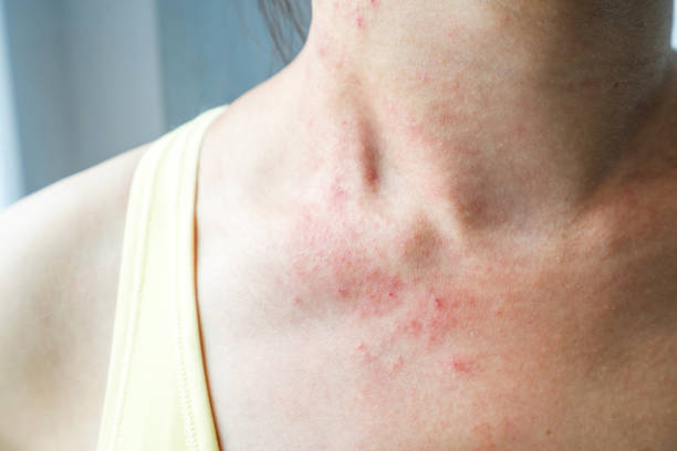 Hpv causes rashes, Hpv causes skin rashes