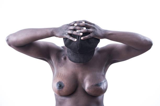 Junge Frau hat Brustkrebs überlebt – Foto