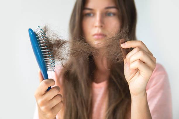 年輕女子因為脫髮而心煩意亂 - 頭髮 個照片及圖片檔