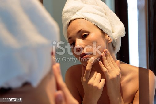 beautiful girl with acne looking herself on the mirror