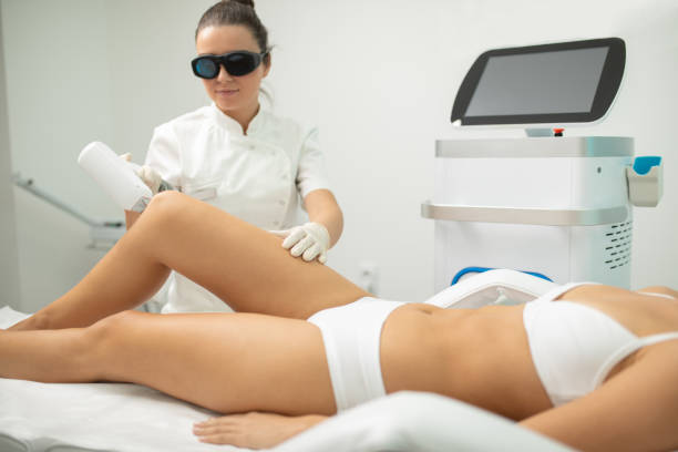 Young woman on laser hair removal treatment Beautiful young woman receiving laser body hair removal treatment at beauty and health clinic. Beautician is also young and concentrated. Treatment on legs laser stock pictures, royalty-free photos & images