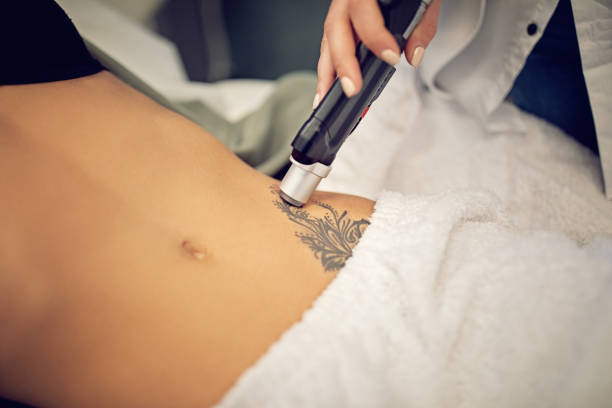 Young woman on laser tattoo removal procedure stock photo