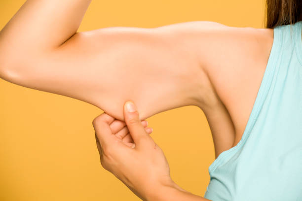 年輕女子捏脂肪在她的手在黃色的背景圖像檔