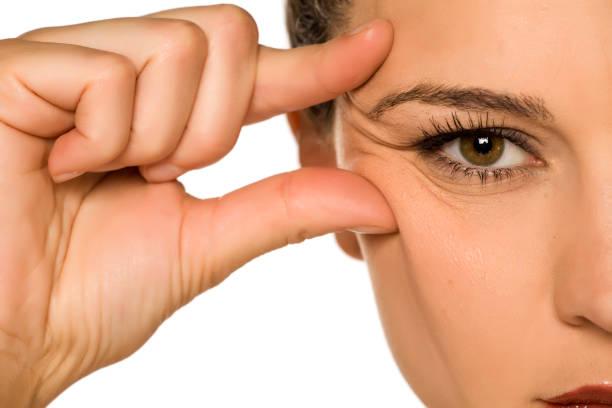 年輕女子捏她的眼睛皺紋與她的手指在白色背景圖像檔