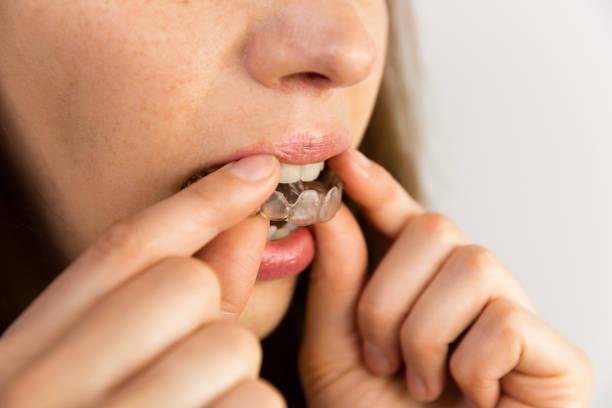 young woman puts transparent aligner for dental treatment - fare la guardia foto e immagini stock
