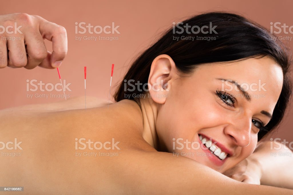 Young Woman Receiving Acupuncture Treatment In Spa stock photo