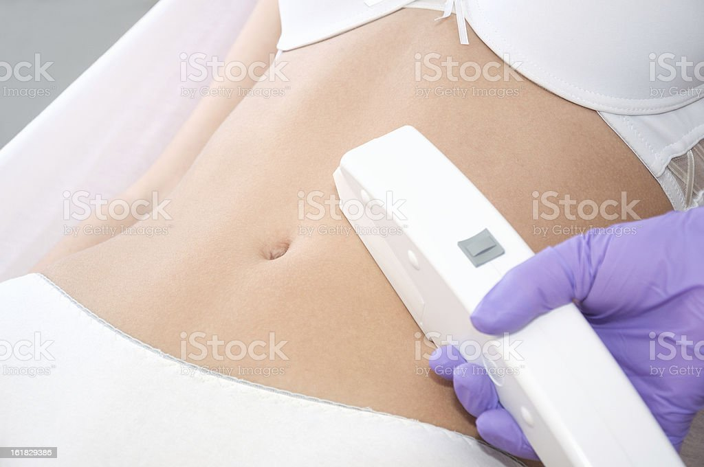 Young woman receiving laser epilation treatment royalty-free stock photo